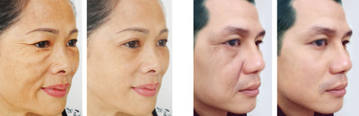 Ảnh trước – sau: Căng da mặt